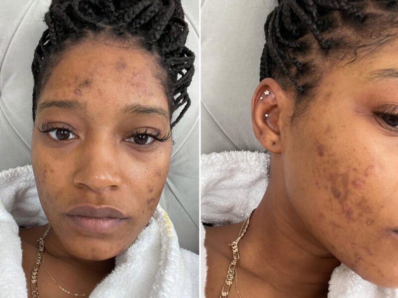 Keke Palmer Speaks Candidly About Polycystic Ovarian Syndrome and Acne